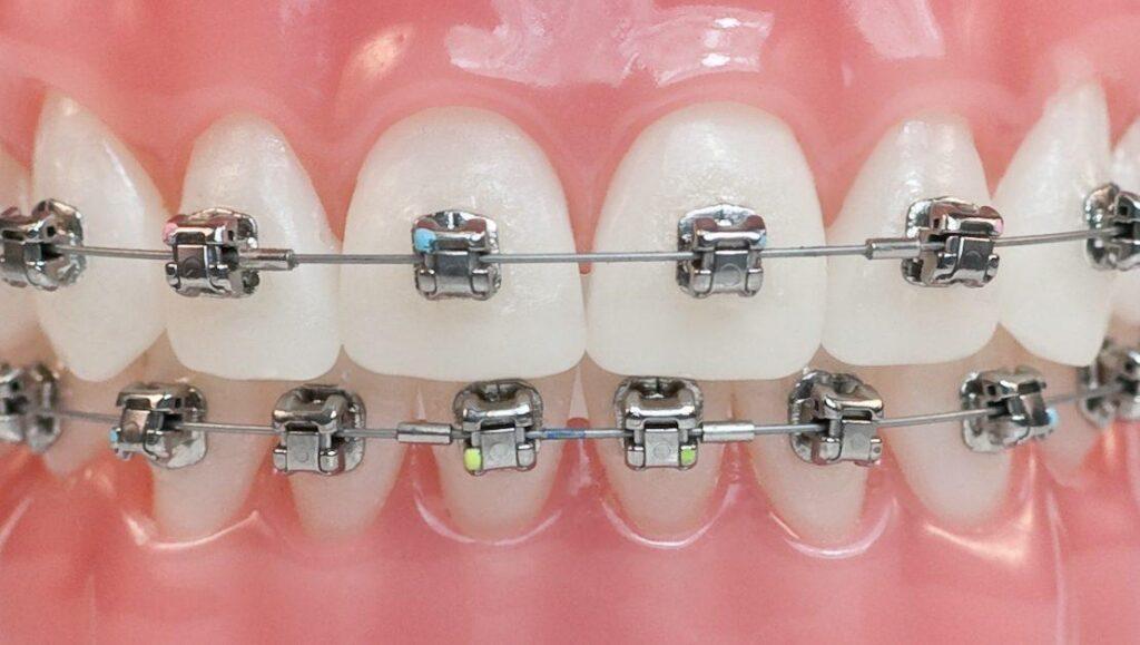 Выравнивание зубов (брекеты)