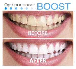 Read more about the article Отбеливание зубов системой Boost
