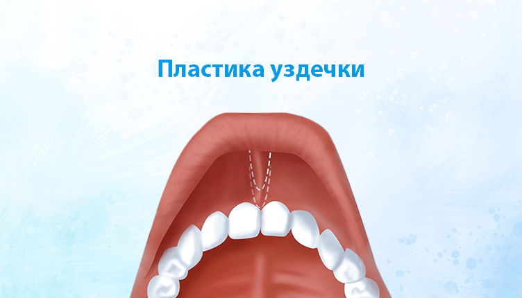 You are currently viewing Пластика уздечки губы