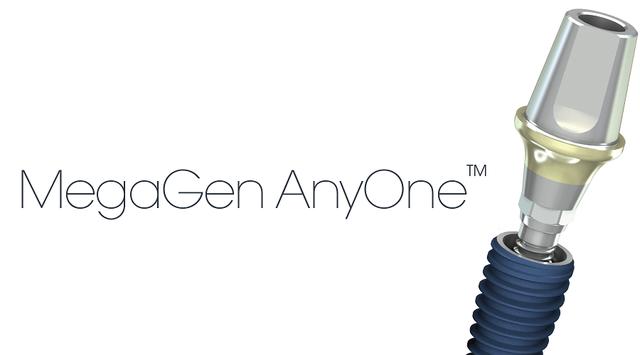 You are currently viewing Установка имплантов MegaGen  Anyone (Корея)