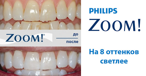 You are currently viewing Отбеливание аппаратом ZOOM
