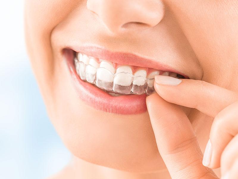 You are currently viewing Элайнеры в Астане выравнивание зубов на элайнерах